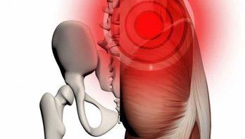 Синдром грушевидной мышцы: что это такое? Причины появления и лечение