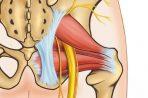 Защемление седалищного нерва: почему происходит? Симптомы, лечение