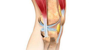 Деформирующий остеоартроз: причины возникновения, лечение, симптомы