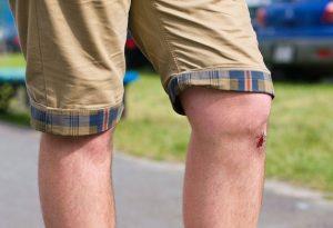 о профилактике коленных ушибов
