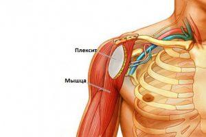 Изображение - Медикаментозное лечение плексита плечевого сустава %D0%BF%D0%BB%D0%B5%D0%BA%D1%81%D0%B8%D1%82-%D0%B8-%D0%BF%D0%BB%D0%B5%D1%87%D0%BE-300x200