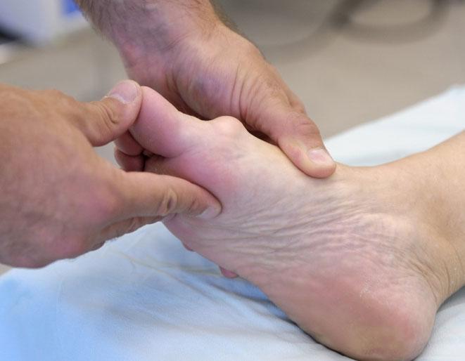 Почему опухает косточка на ноге? Причины, симптомы, лечение