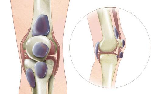 Воспаление суставов: причины, симптомы, диагностика, лечение