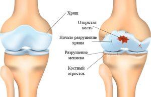почему разрушаются суставы при остеоартрозе