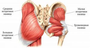 Синдром грушевидной мышцы