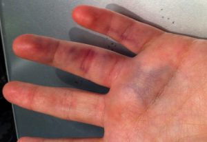 могут ли быть осложнения при ушибах руки