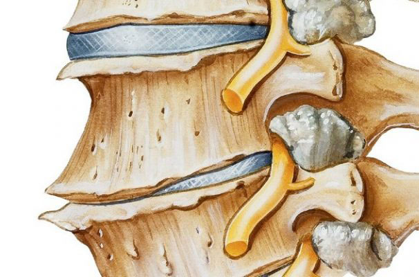 Остеофиты: причины, симптомы, диагностика, лечение