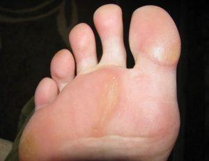 Причина натоптышей на большом пальце ноги thumbnail