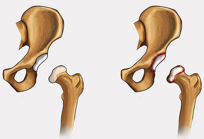 Деформирующий артроз тазобедренного сустава: симптомы и лечение