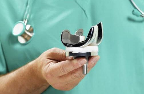 Эндопротезирование коленного сустава: виды, протезы, профилактика