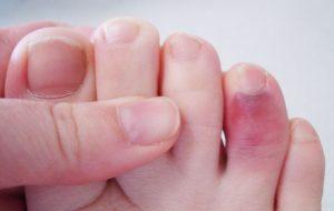диагностика ноги и отличие ушиба от перелома