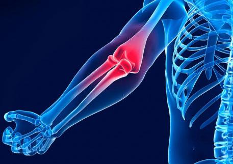 Вывих локтевого сустава: что это такое? Симптомы и лечение