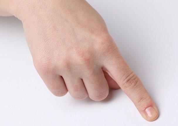 Вывих пальца на руке – как проявляется? Лечение и реабилитация