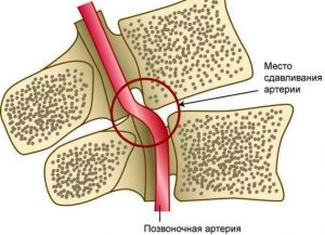 лечение синдрома позвоночной артерии