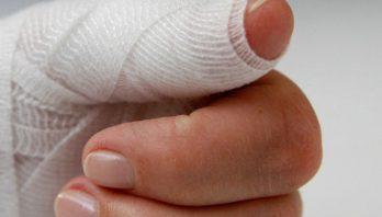 Ушиб пальца на руке: первая помощь, симптоматика, лечение