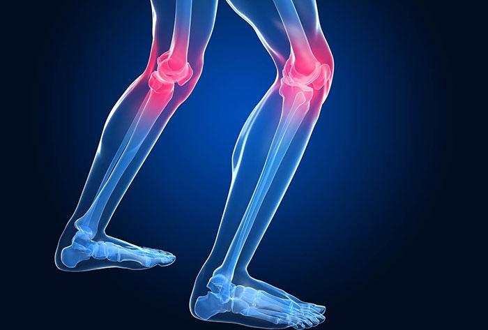 Остеопороз коленного сустава: что за болезнь? Симптоматика, лечение