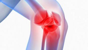 Деформирующий артроз коленного сустава: причины, диагностика, лечение