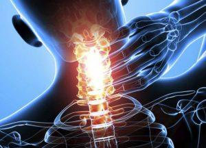диагностика и профилактика Унковертебральный артроз шеи
