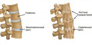 профилактика болей в позвоночнике и корешковый синдром
