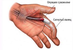 симптомы лигаментита