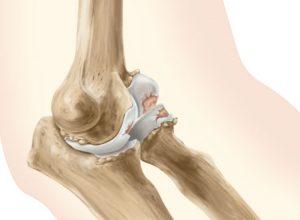 От чего развивается артрит как лечить