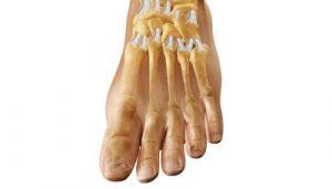 Артроз плюснефалангового сустава: что это? Симптомы и лечение
