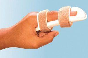 диагностика, лечение вывихов на пальцах