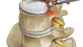 Удаление грыжи позвоночника: способы, осложнения, реабилитация