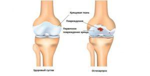 Генерализованный остеоартроз