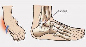 о вывихе ноги, причины