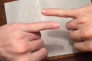 вывихи пальцев