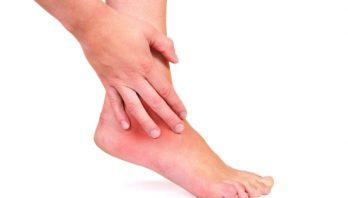 Артроз плюснефалангового сустава стопы: симптомы, источники развития, лечение