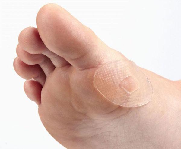 Натоптыши на подошве со стержнем: причины, симптомы и лечение