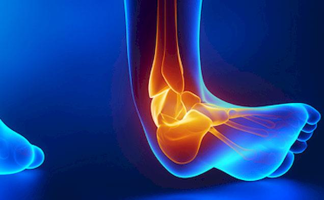 Растяжение связок стопы: симптоматика, понятие о патологии, лечение