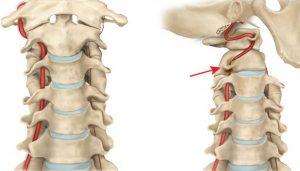 как проявляется шейный остеохондроз и артерии