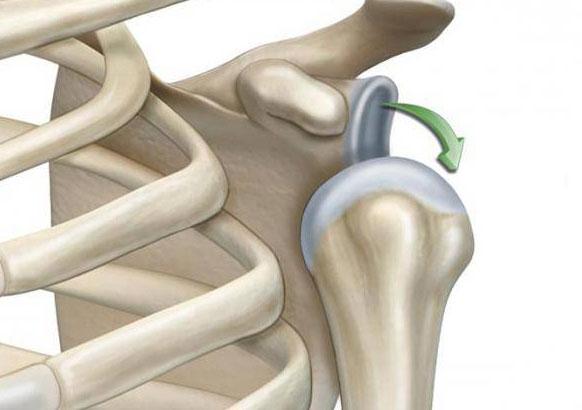 Вывих плеча: что это такое? Симптомы, причины, лечение