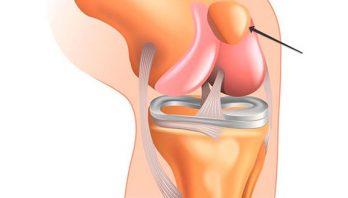 Вывих коленного сустава: симптомы, диагностика, лечение