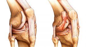 больные суставы сравнение и остеоартроз