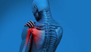 Растяжение связок плечевого сустава: симптомы, лечение, диагностика