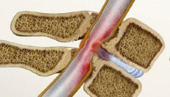 Стеноз позвоночного канала в поясничном отделе: симптомы и лечение