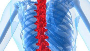 Ушиб позвоночника – как проявляется? Симптомы, отличия, лечение