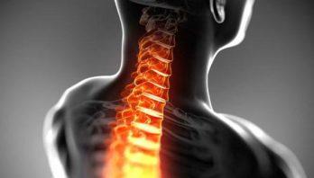 Грыжа шейного отдела позвоночника: особенности, причины развития, лечение