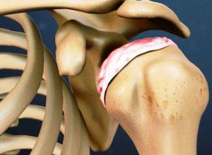 о заболеваниях плеча, профилактика