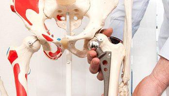 Замена тазобедренного сустава: методы, показания, реабилитация