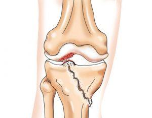 коленный сустав и посттравматический артрит