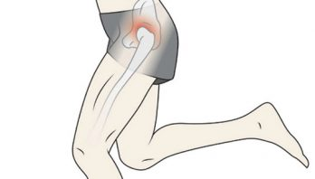 Перелом шейки бедра: классификации, симптомы, диагностика, лечение