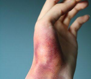 синяки и ушибы при ударе или падении