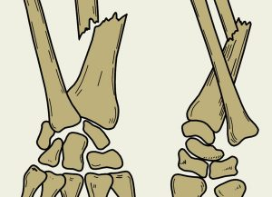 о переломах и лечении