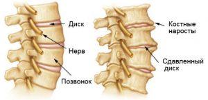 Остеоартроз позвоночника