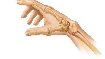 Перелом лучевой кости руки: симптомы, лечение, реабилитация